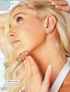 Heidi Montag Pratt surgery